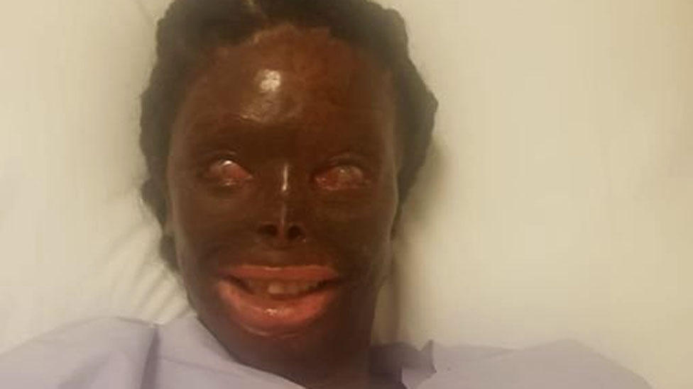 A woman who has survived an acid attack