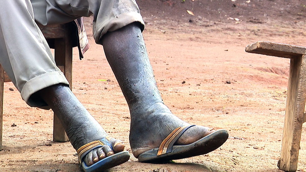 A leg affected by elephantiasis