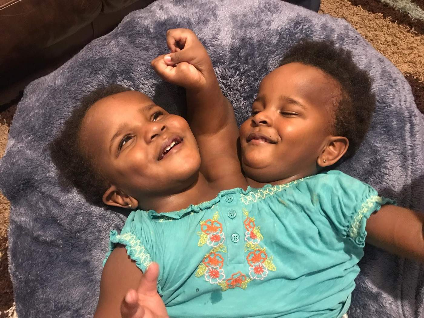 The conjoined twins whose fight for life took them from senegal to wales