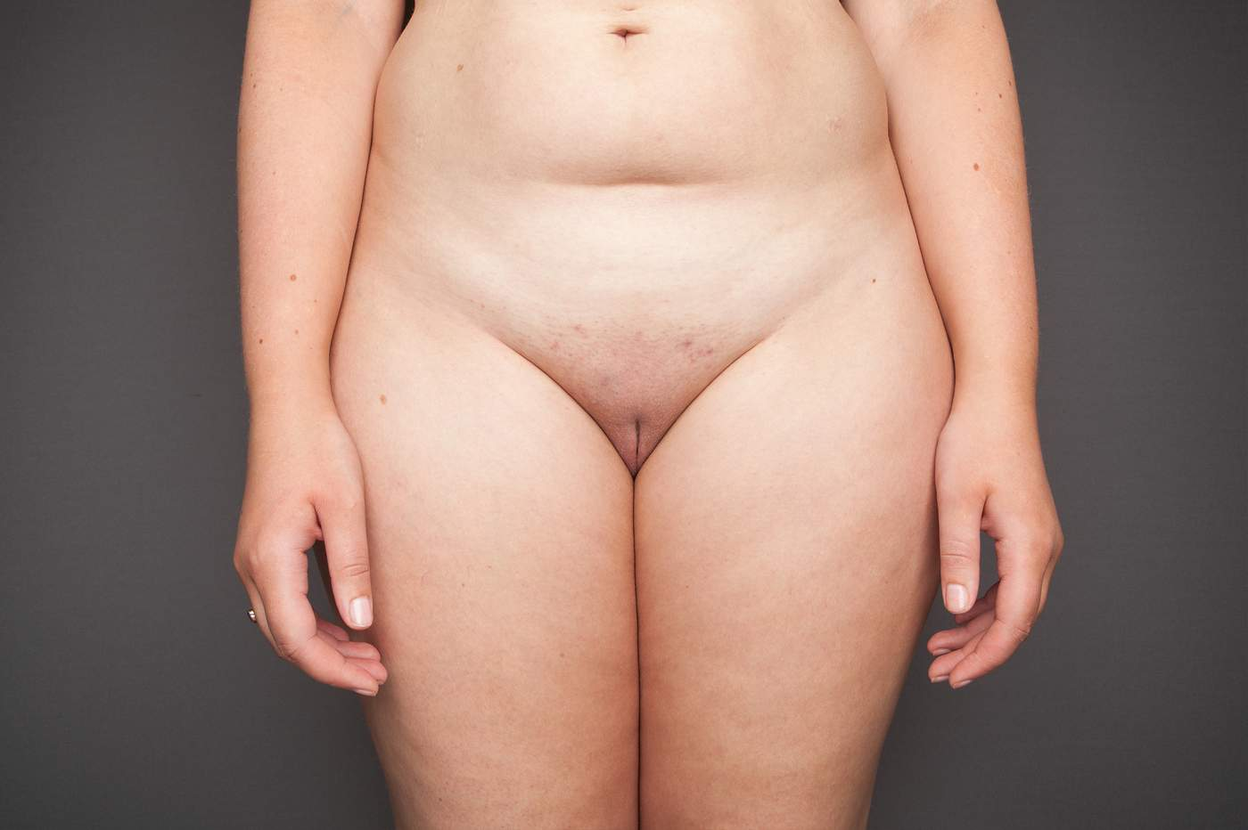 Laura Dodsworth Why I Photographed 100 Vulvas - Bbc News-3834