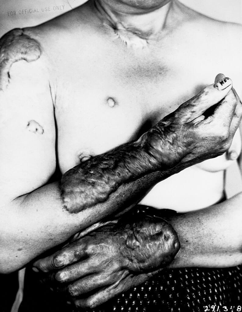 Quemaduras en los brazos de una mujer