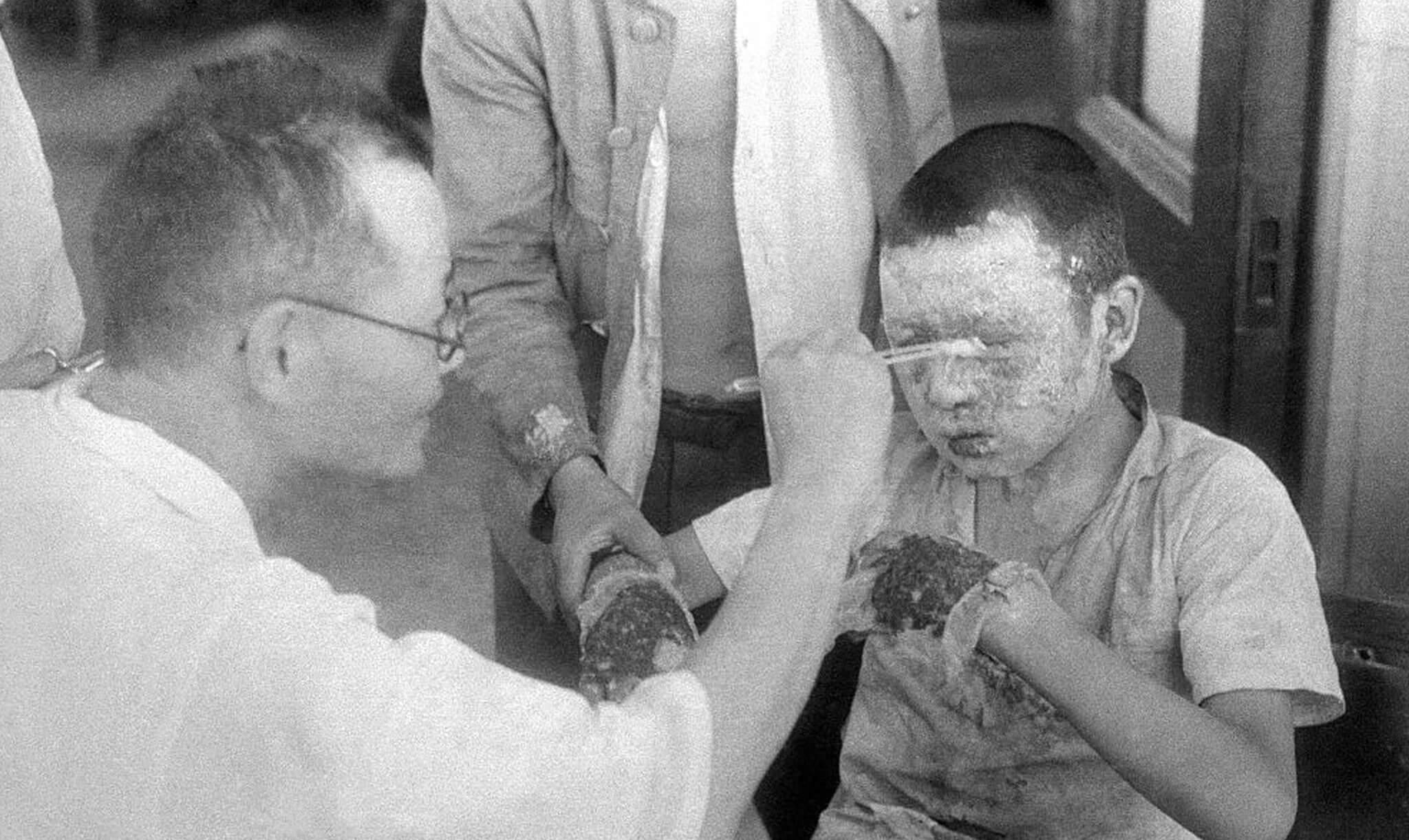 Doctor limpia las heridas de un niño afectado por la bomba nuclear