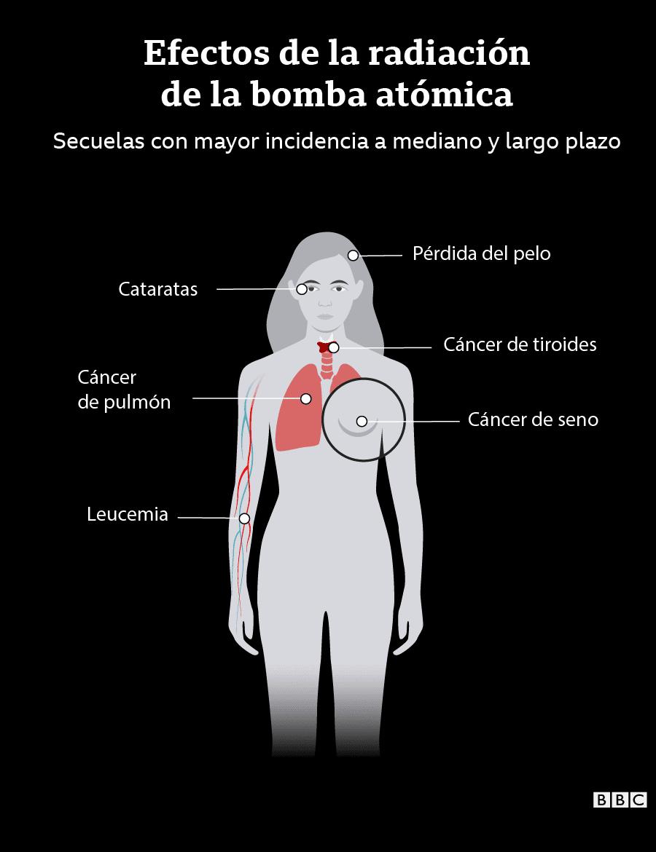 Infografía de los efectos a medio y largo plazo de la radiación: cáncer de pecho, de pulmón, de tiroides; caída de pelo; cataratas.